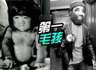 中国第一毛孩:红的时候唱歌跳舞演电视剧,如今靠卖蜂蜜为生!