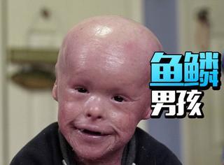 5岁小男孩浑身长满鳞片,为了活命他每天生活在凡士林里!