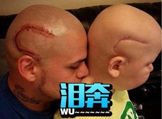 为证明儿子不是怪物,老爸在脑袋上纹了一道疤痕刺青