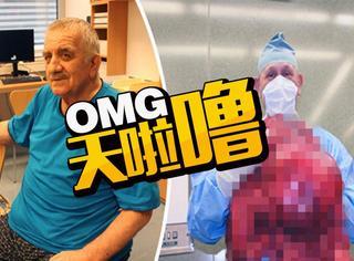 男子误以为长啤酒肚,结果发现是54斤巨大肿瘤!