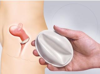 涨姿势!12种花式避孕产品亮瞎你的眼