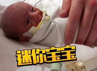 生下来只有一斤重,医生都说这个超迷你婴儿活不下来