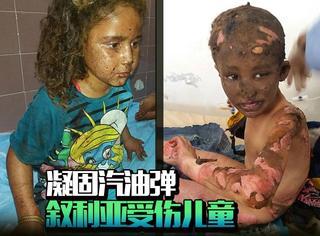 """直击叙利亚战乱:烧伤大量儿童的""""凝固汽油弹"""",到底是什么鬼!"""