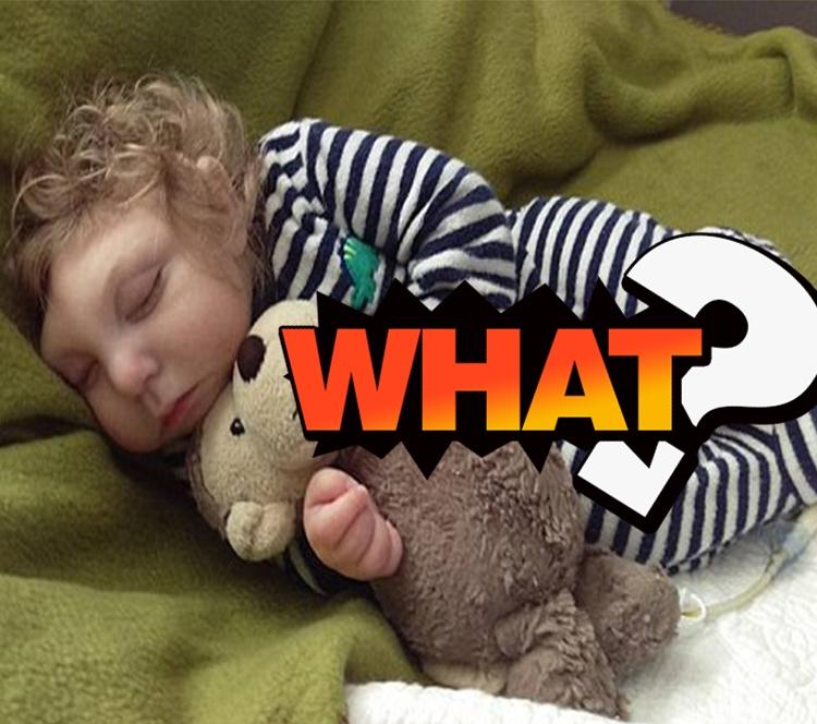 无脑畸形男婴患罕见疾病奇迹存活