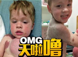 医生用隆乳手术消除病童巨大黑痣