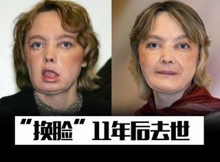 """被宠物咬掉半张脸,世界首个成功""""换脸""""的女人术后11年后去世"""