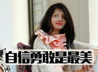 """""""我很勇敢""""——印度被硫酸毁容女孩走上纽约时装周T台"""