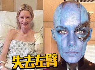 她是一线特技女演员 失去左臂后仍坚强生活