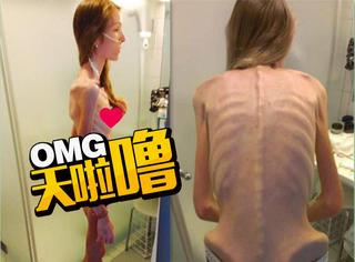 180cm美女患厌食症仅30公斤 摆脱骷髅生活后感动无数网友!