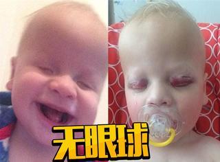 英国宝宝天生无眼球 出生14个月没见过父母样子