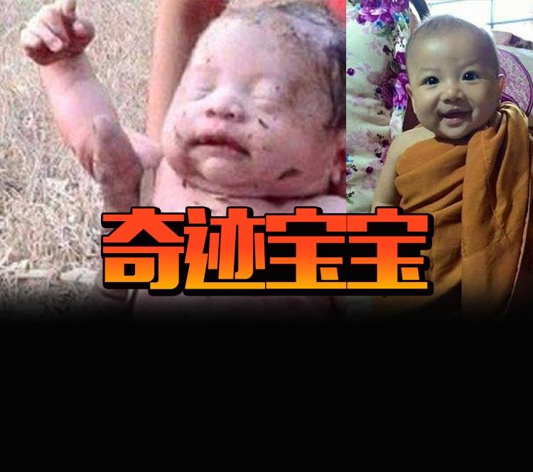 新生婴儿被连刺14刀后又被埋在土里,但他还是奇迹生还!