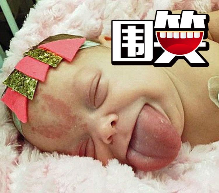 患巨舌症婴儿舌头比成人还大,手术时露出蜜汁微笑