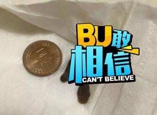 这图有毒,台湾姑娘挖出沉积12年的巨大耳屎