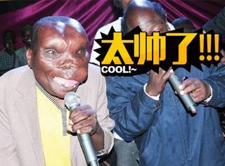 男子患病长相似外星人,现在当上了歌手