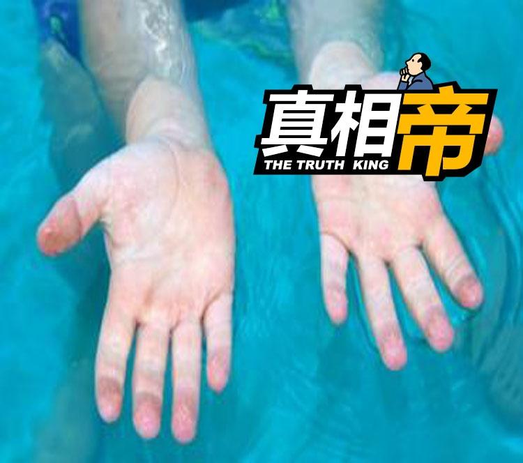 【真相帝】为什么洗澡太久手指会起皱?