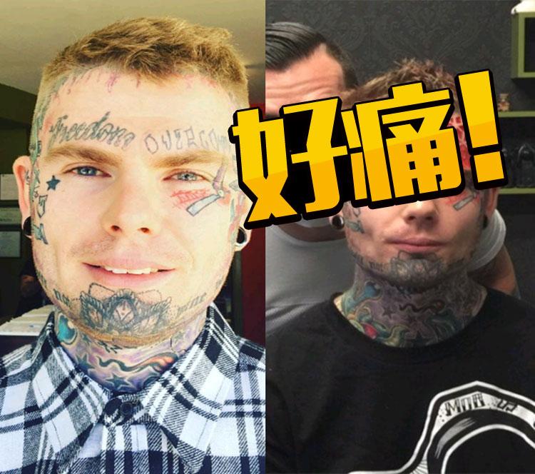 因为厌倦了额头纹身,这个男人直接削掉了皮肉!