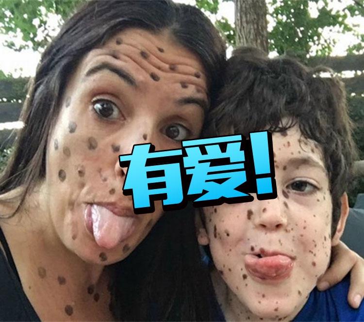 8岁男孩脸上长满胎记被嘲笑,网友的反应好有爱