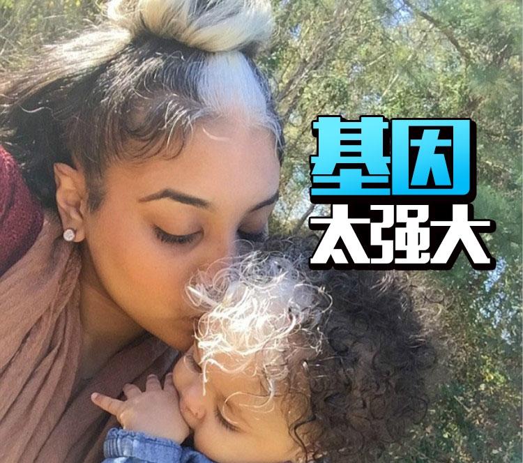 女儿继承妈妈的白发胎记,看完才知道什么是基因强大