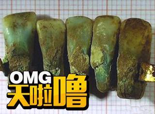 科学家发现最古老的假牙,竟然是用死人牙齿做的