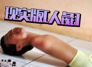 现实版「人彘」小男孩:靠嘴和肩膀写字、玩游戏,诠释生命的坚强
