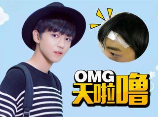 王俊凯意外受伤缝了2针,这孩子怎么就爱跟自己的脸蛋过不去?