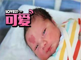 小婴儿一出生脸上就有个爱心胎记,大家都说是上帝赐的萌萌礼物!