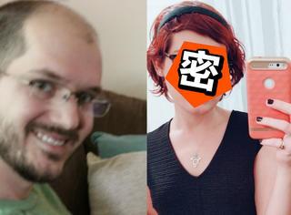 秃头大叔连续服用雌性激素一年,现在长这样