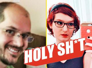 【Holy Shit】秃头男子连续服用雌激素,不仅长出头发还....