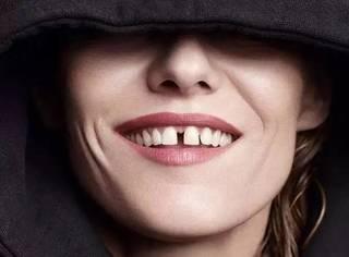 想要晋级超模排行榜,你的牙缝足够宽吗?