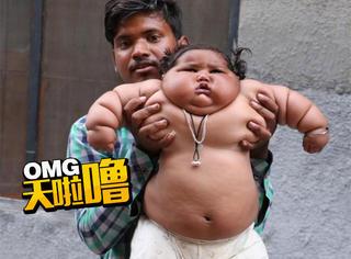 印度8个月大女婴,突然胃口大增体重惊人