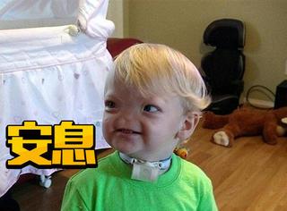从出生就没有鼻子的小男孩去世了,但愿他下辈子做个健康的人