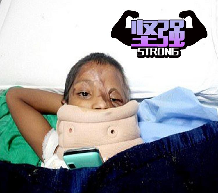 印度7岁女童被父泼硫酸   医院还强制让退院