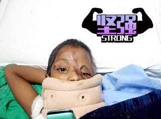 印度7歲女童被父潑硫酸   醫院還強制讓退院
