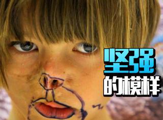 小女孩被熊吃掉半张脸,现在的模样让所有人感动