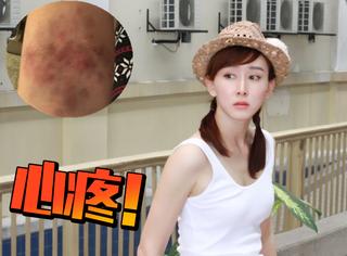 胡静南方拍戏胳膊上起大片湿疹,在线求网友分享去湿方法