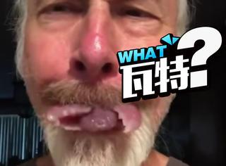 这位仁兄将自己改造成了蚂蚁人,舌头张开的瞬间炸裂了