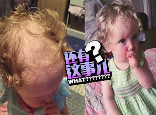2岁女儿患有拔毛发癖,妈妈只好...