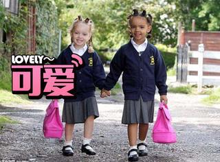 最奇怪的双胞胎姐妹,一个是黑人一个是白人