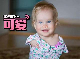 被收养后,这个天生断臂的女婴露出了最美的微笑