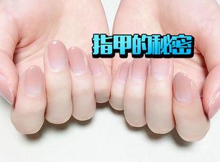 藏在指甲上的秘密,原来有凹陷是湿疹啊!
