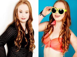 这个唐氏综合症女孩的梦想是当一名模特,她做到了!